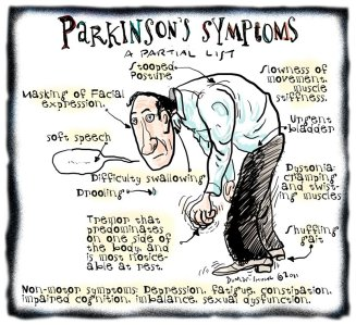 parkinsons symptoms not perks